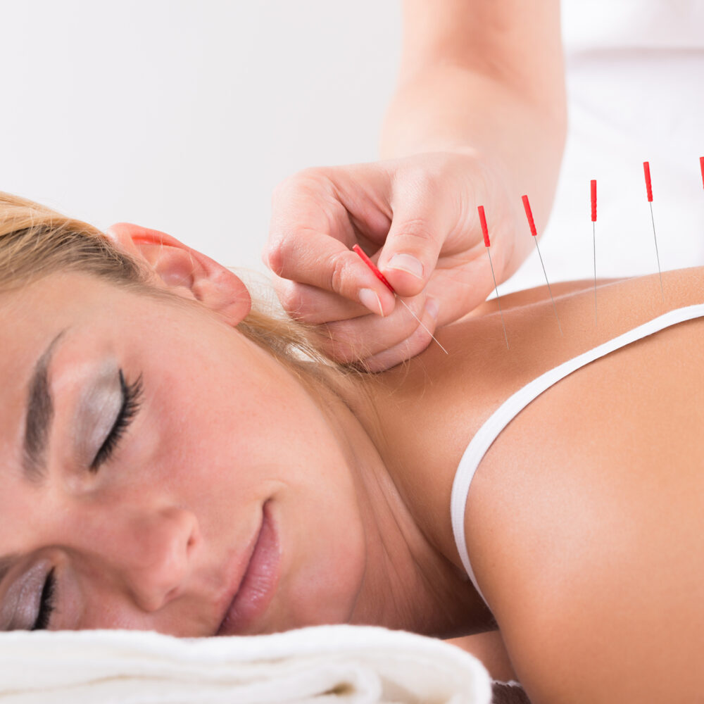 acupuncture near me